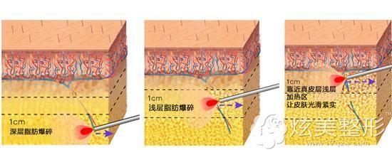 光纤溶脂手术原理
