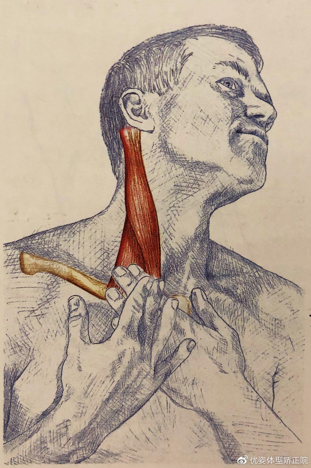 胸锁乳突肌拉伸