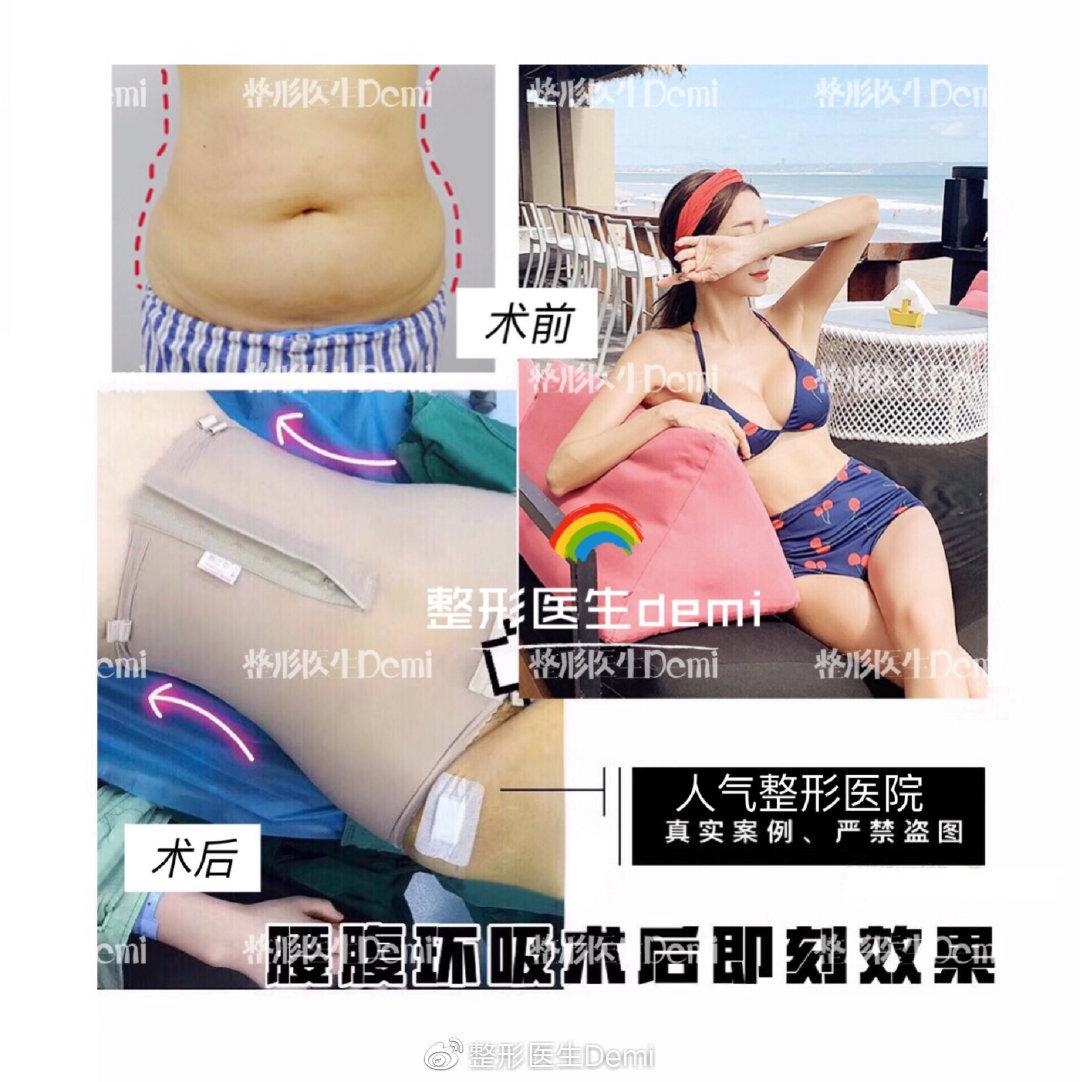 腰腹环吸前后对比
