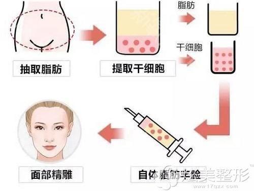 自体脂肪填充面部手术过程