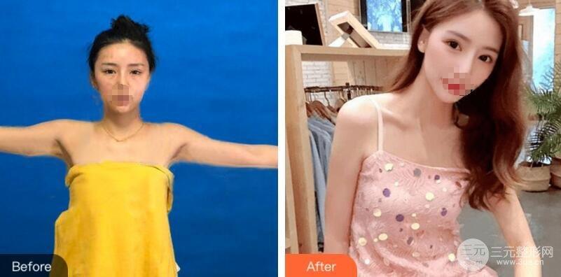 手臂吸脂术后效果图对比