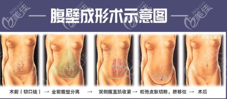 腹壁成形术过程示意图