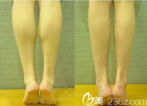 小腿神经阻断术前后对比图