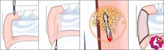 手臂吸脂的原理